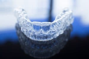 Everything You Need to Know About Invisalign®